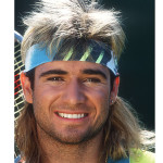 celebrity-hair-loss-agassi-3