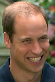 celebrity-hair-loss-prince-william-2