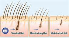 the-best-treatment-for-hair-loss-follicle-miniturization
