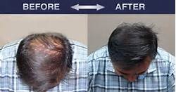 the-best-treatment-for-hair-loss-thickening-2